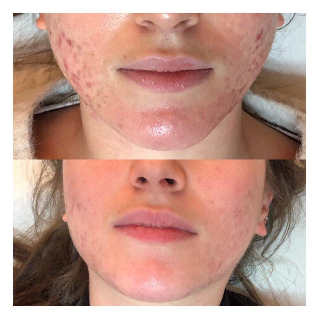 Traitement acné + cicatrices acné